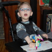 Cerebral Palsy: Understanding Early Signs and Classification