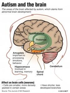 brain in autism