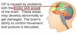 cerebral palsy brain