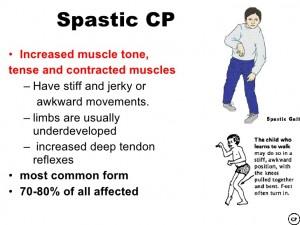 spastic CP