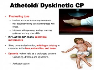 athetoid/ dyskinetic CP: source slideshare