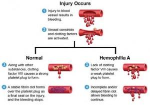 mechanism in hemophilia (pic: web)