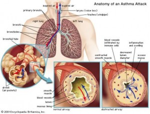 The Physiology of Asthma Attack
