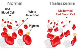 red blood cells in thalassemia